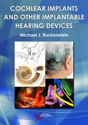 Picture of Cochlear Implants and Other Implantable Hearing Devices