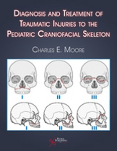 Picture of Diagnosis and Treatment of Traumatic Injuries to the Pediatric Cranofacial Skeleton